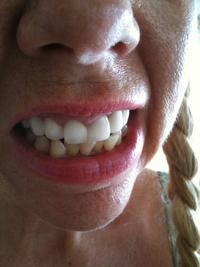 bulimia botton teeth like cheese before treatment