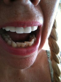 Bulimia nervosa effects rots teeth they are as soft as cheese after years of bulimia