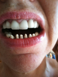 during treatment for bulimia rotted teeth replacement